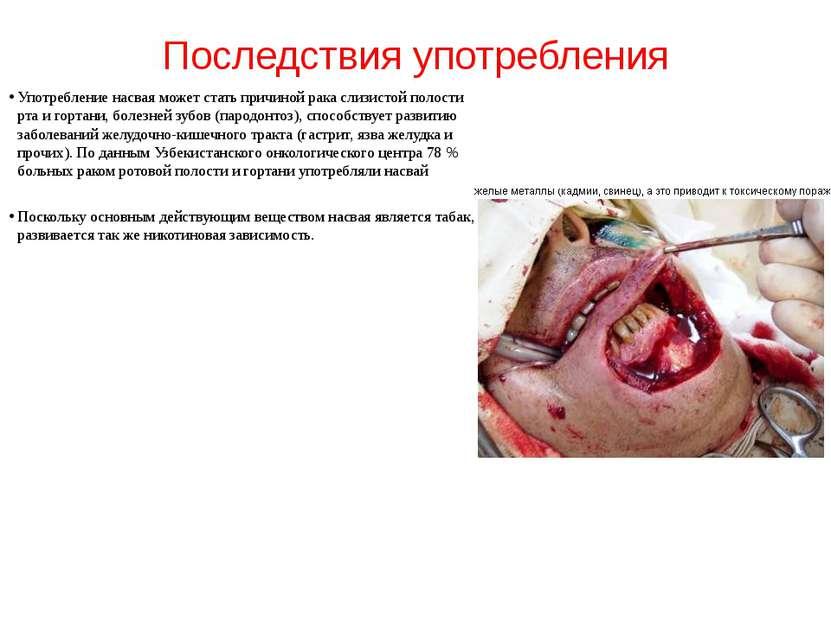 Последствия употребления Употребление насвая может стать причиной рака слизис...