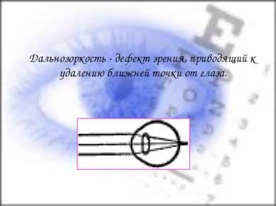 Дальнозоркость - дефект зрения, приводящий к удалению ближней точки от глаза.