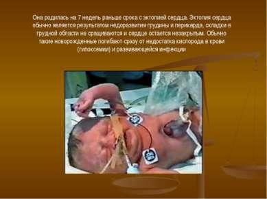 Она родилась на 7 недель раньше срока с эктопией сердца. Эктопия сердца обычн...
