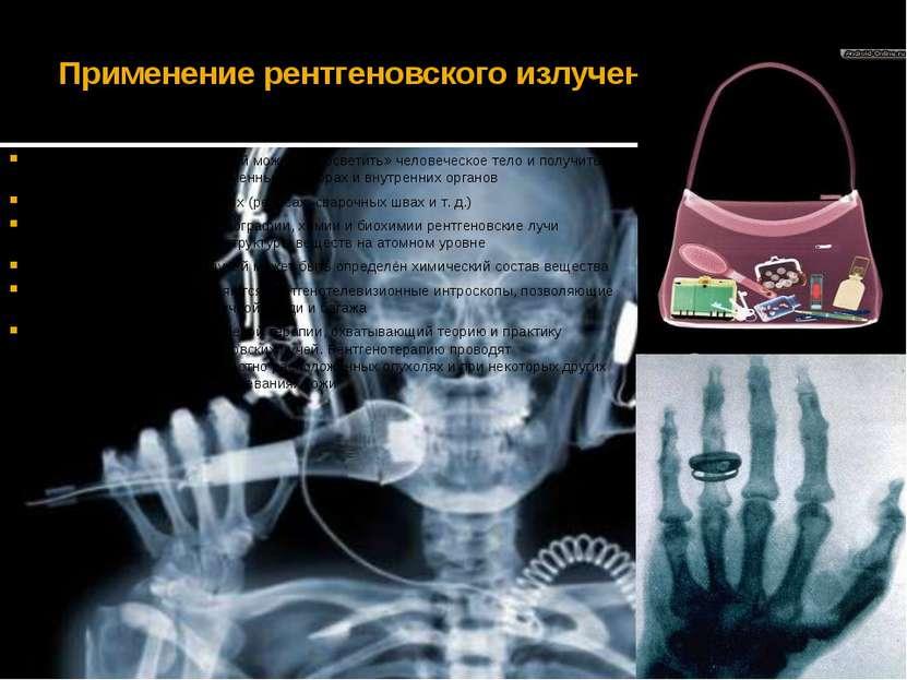 Применение рентгеновского излучения При помощи рентгеновских лучей можно «про...