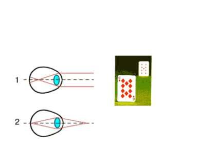 БЛИЗОРУКОСТЬ (миопия), недостаток зрения, при котором хорошо видны близкие пр...