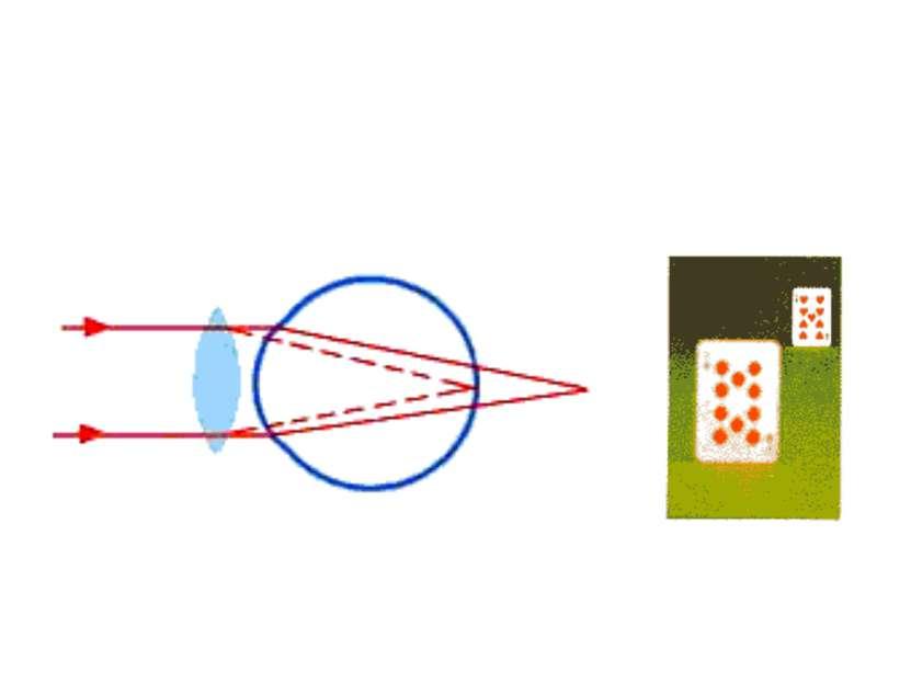 ДАЛЬНОЗОРКОСТЬ (гиперметропия), недостаток зрения, мешающий ясно видеть на бл...