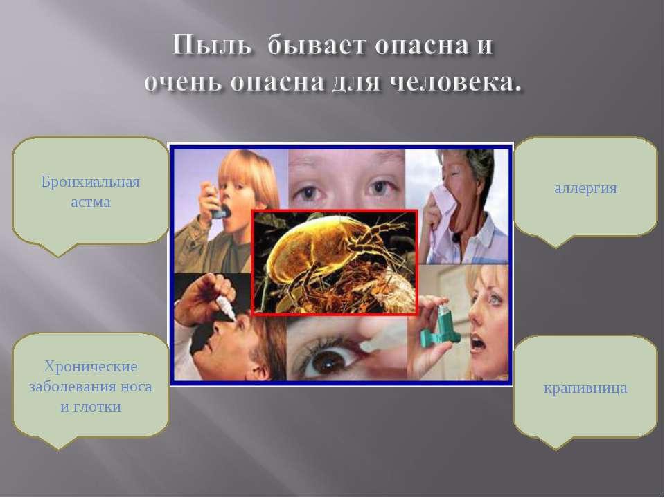 Бронхиальная астма Хронические заболевания носа и глотки аллергия крапивница