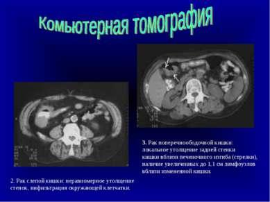 2. Рак слепой кишки: неравномерное утолщение стенок, инфильтрация окружающей ...