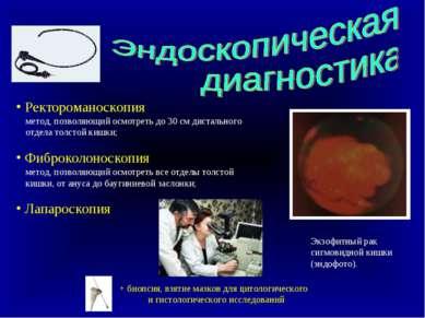 Ректороманоскопия метод, позволяющий осмотреть до 30 см дистального отдела то...