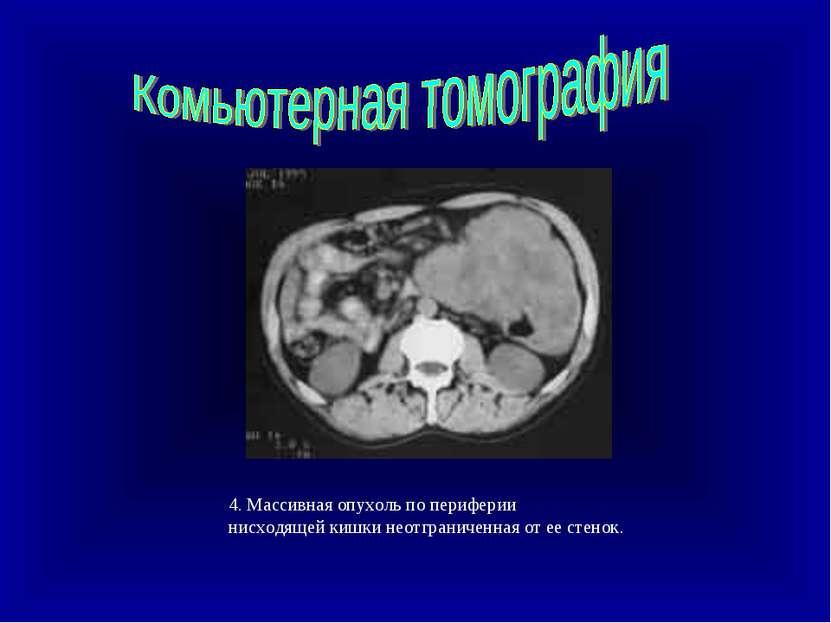 4. Массивная опухоль по периферии нисходящей кишки неотграниченная от ее стенок.
