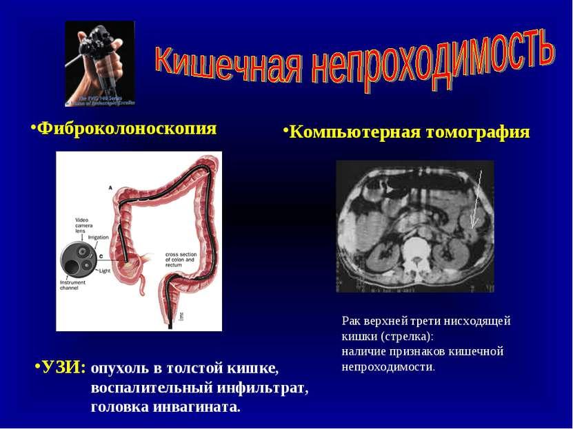 Фиброколоноскопия УЗИ: опухоль в толстой кишке, воспалительный инфильтрат, го...