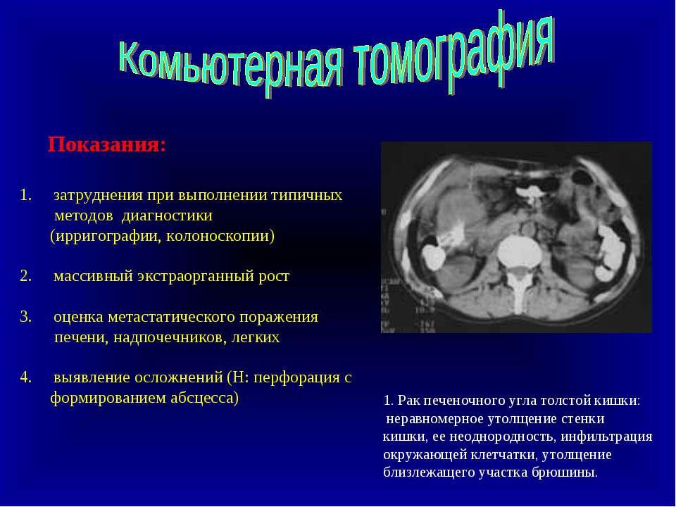Показания: затруднения при выполнении типичных методов диагностики (ирригогра...