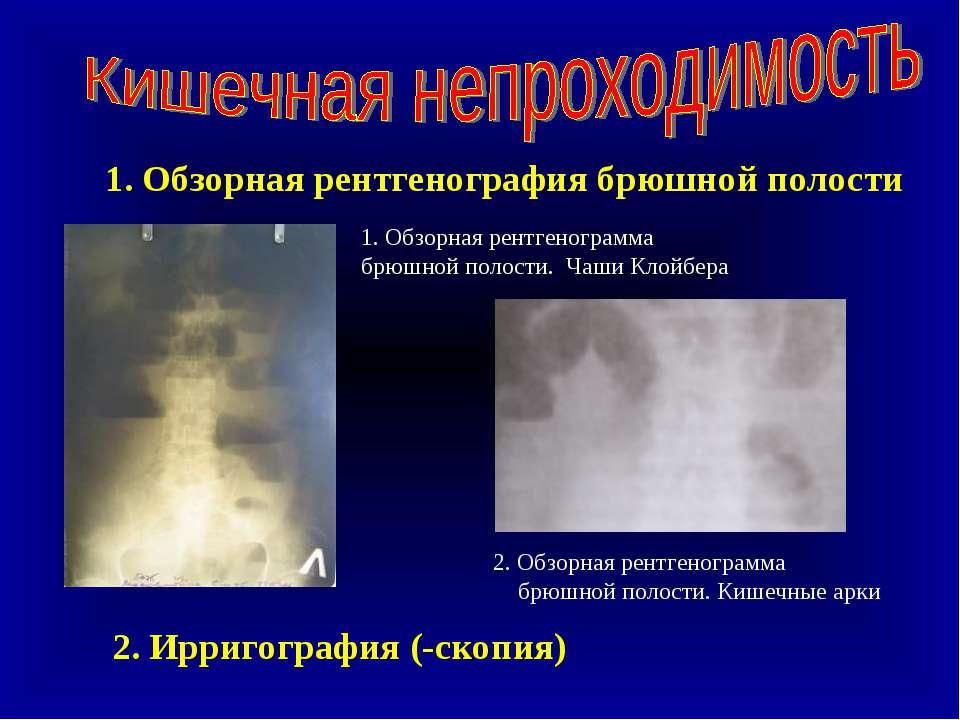 1. Обзорная рентгенография брюшной полости 1. Обзорная рентгенограмма брюшной...