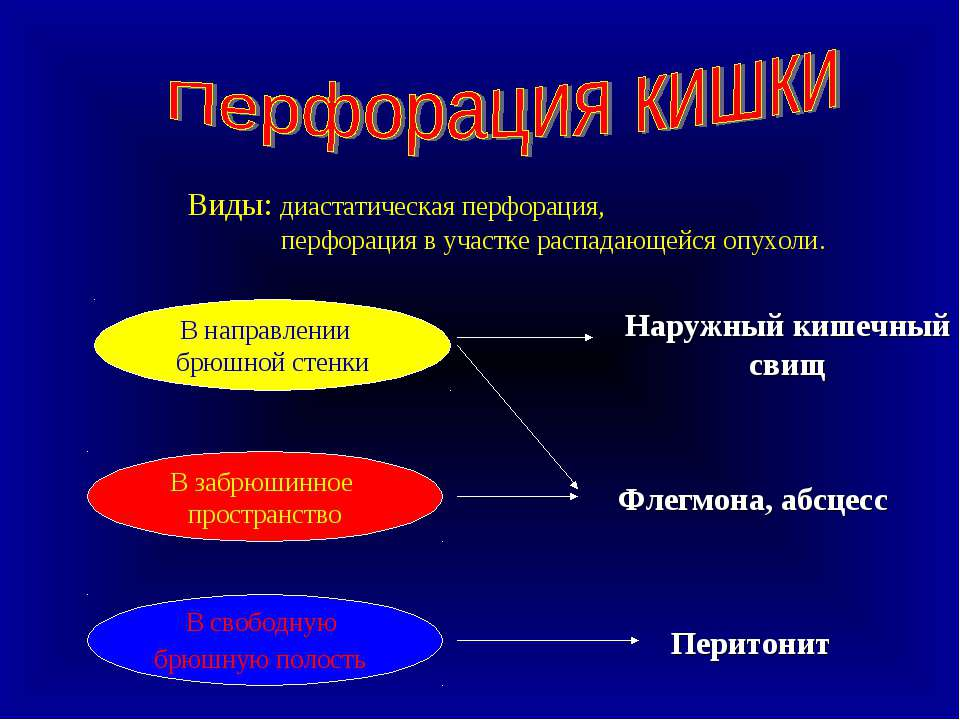 Виды: диастатическая перфорация, перфорация в участке распадающейся опухоли. ...