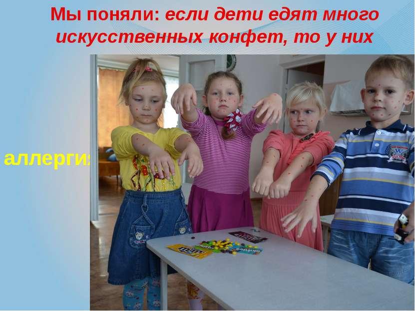 Мы поняли: если дети едят много искусственных конфет, то у них аллергия