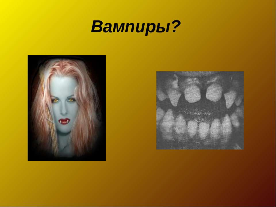 Вампиры?
