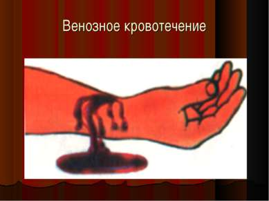 Венозное кровотечение