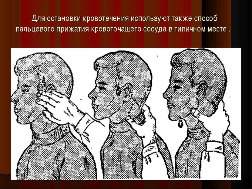 Для остановки кровотечения используют также способ пальцевого прижатия кровот...