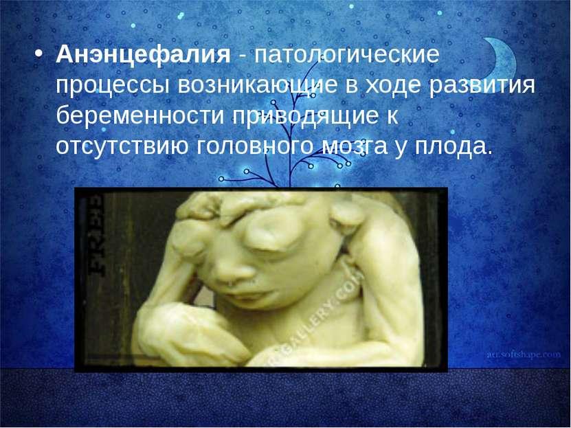 Анэнцефалия - патологические процессы возникающие в ходе развития беременност...