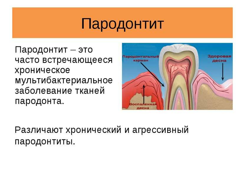 Пародонтит Пародонтит – это часто встречающееся хроническое мультибактериальн...