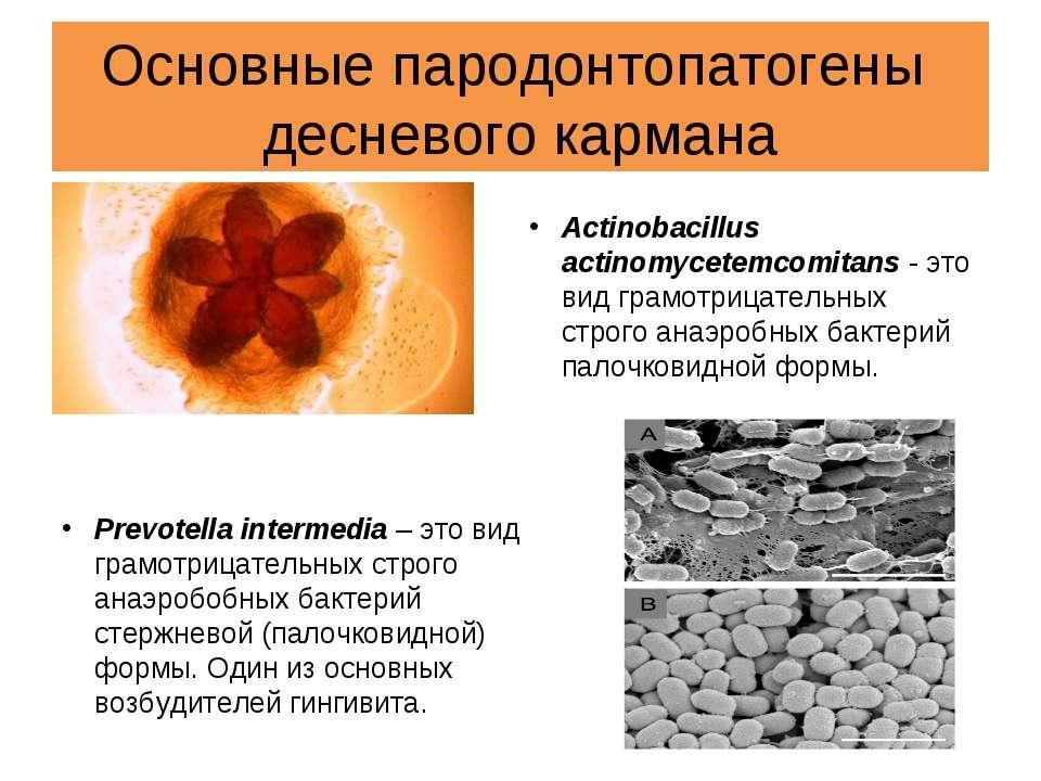 Основные пародонтопатогены десневого кармана Actinobacillus actinomycetemcomi...