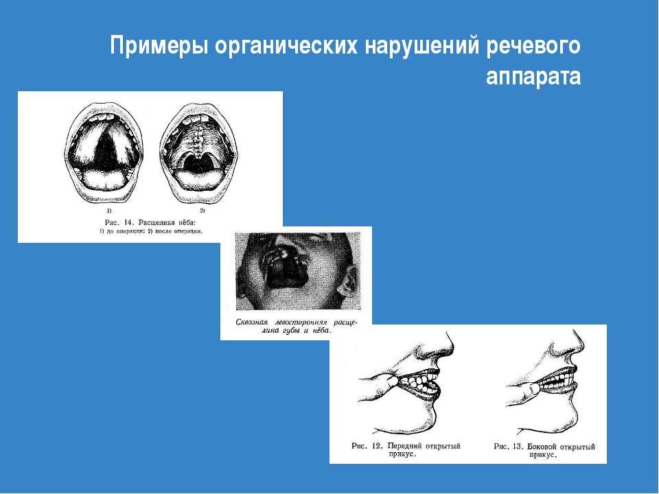 Примеры органических нарушений речевого аппарата