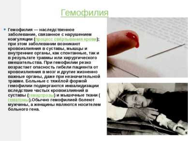Гемофилия Гемофилия — наследственное заболевание, связанное с нарушением коаг...