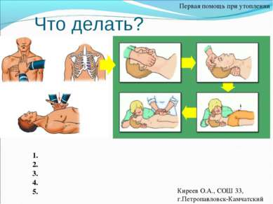 Что делать? Первая помощь при утоплении 1. 2. 3. 4. 5. Киреев О.А., СОШ 33, г...