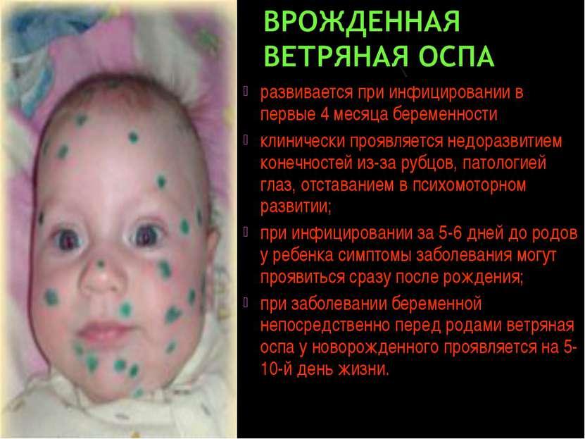 развивается при инфицировании в первые 4 месяца беременности клинически прояв...