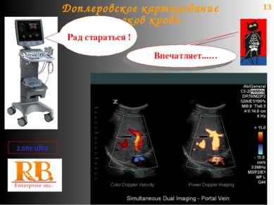 13 Доплеровское картирование потоков крови