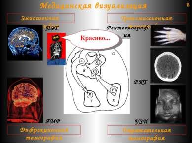 8 Медицинская визуализация Трансмиссионная томография Отражательная томографи...