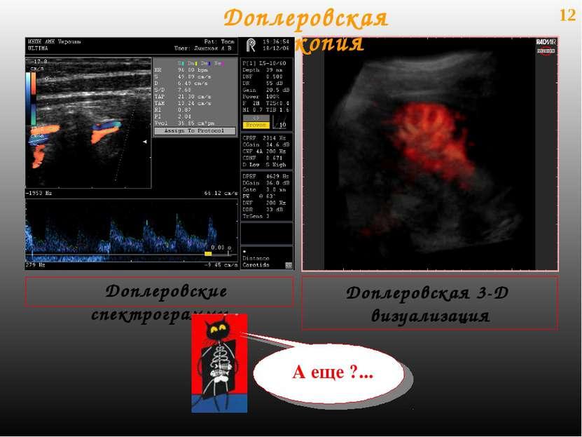 12 Доплеровские спектрограммы Доплеровская эхоскопия Доплеровская 3-D визуали...