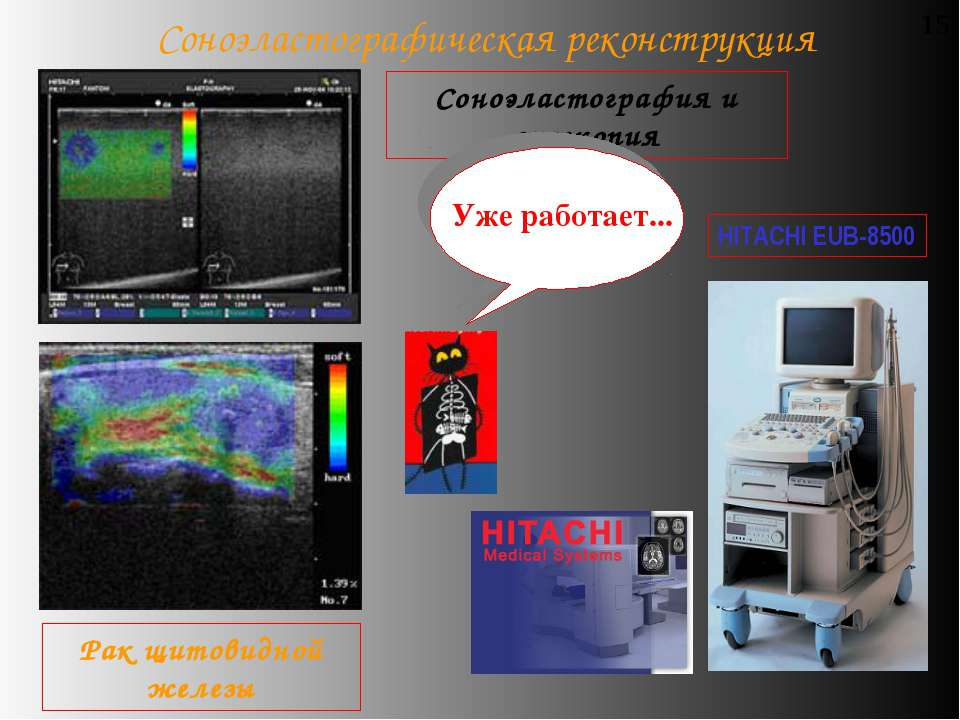 Соноэластографическая реконструкция 15 Соноэластография и эхоскопия Рак щитов...