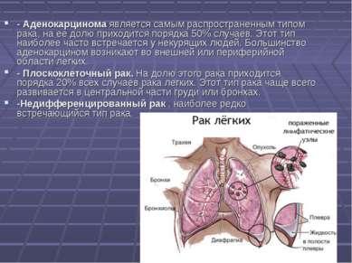 - Аденокарцинома является самым распространенным типом рака, на ее долю прихо...