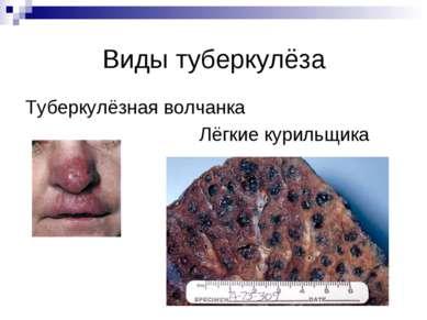 Виды туберкулёза Туберкулёзная волчанка Лёгкие курильщика