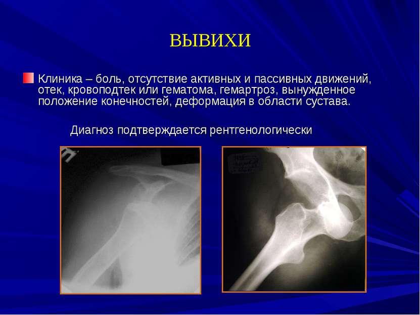 ВЫВИХИ Клиника – боль, отсутствие активных и пассивных движений, отек, кровоп...