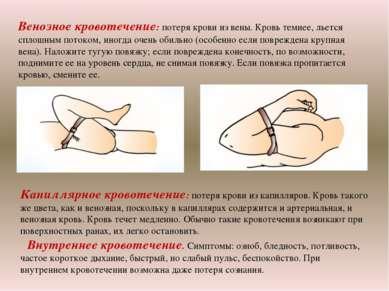 Венозное кровотечение: потеря крови из вены. Кровь темнее, льется сплошным по...