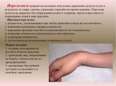 Переломом называется частичное или полное нарушение целости кости в результат...