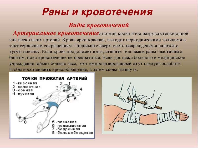 Раны и кровотечения Виды кровотечений Артериальное кровотечение: потеря крови...