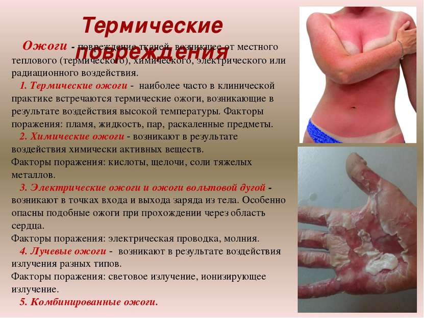 Термические повреждения Ожоги - повреждение тканей, возникшее от местного теп...