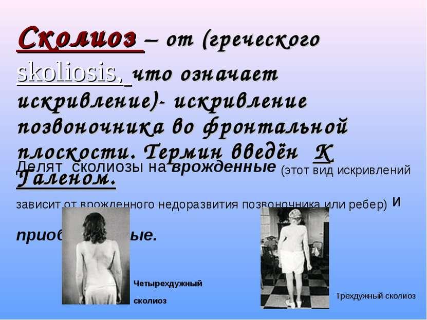 Сколиоз – от (греческого skoliosis, что означает искривление)- искривление по...