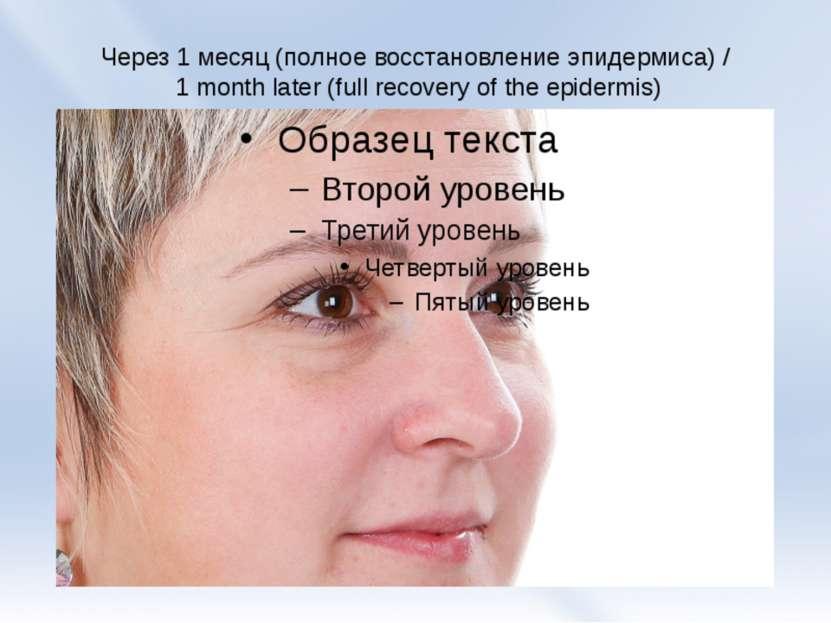 Через 1 месяц (полное восстановление эпидермиса) / 1 month later(full recove...