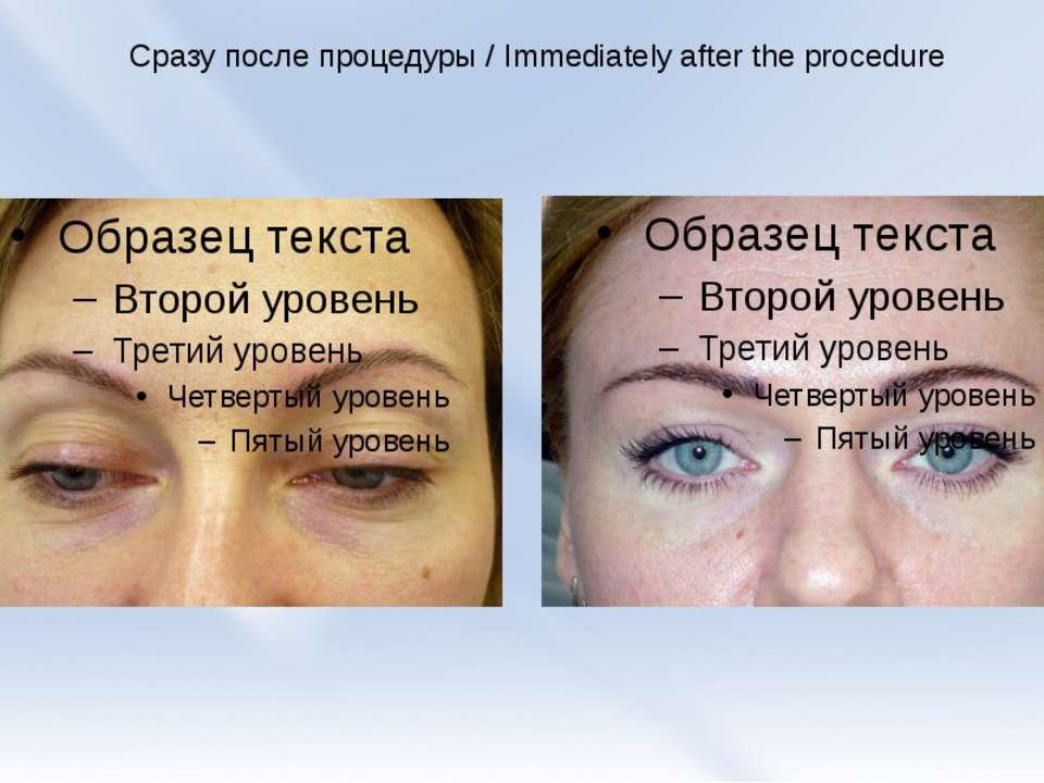 Сразу после процедуры / Immediately after the procedure