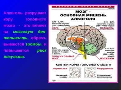 Алкоголь разрушает кору головного мозга - это влияет на мозговую дея-тельност...
