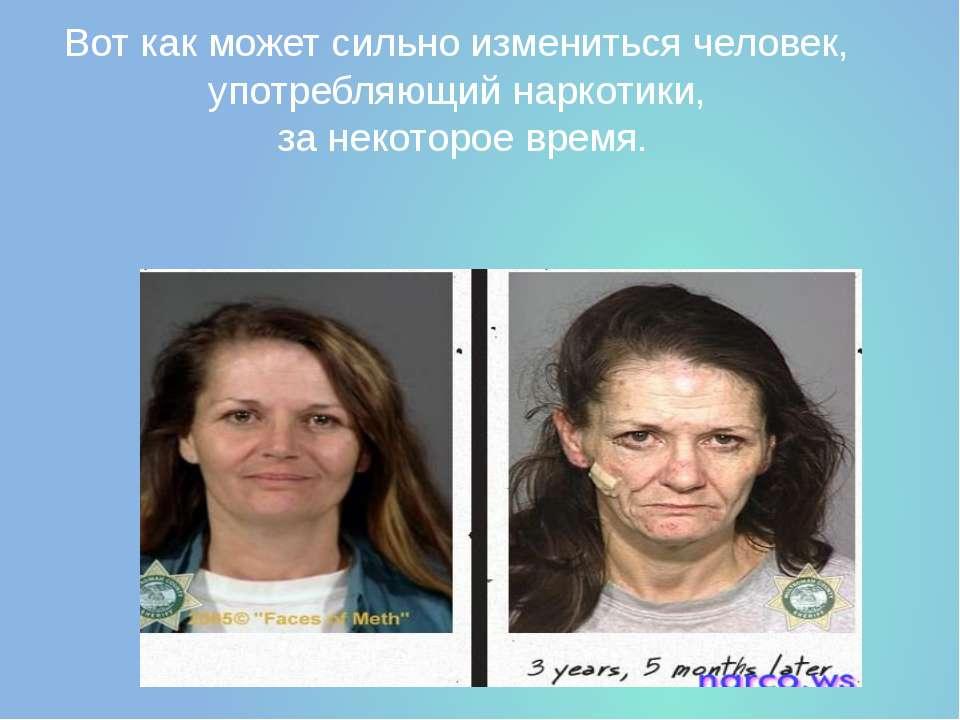 Вот как может сильно измениться человек, употребляющий наркотики, за некоторо...