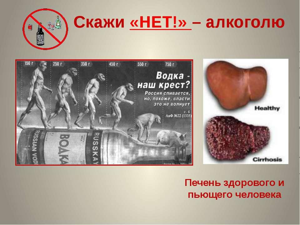 Скажи «НЕТ!» – алкоголю Печень здорового и пьющего человека Данилова О.А. , п...