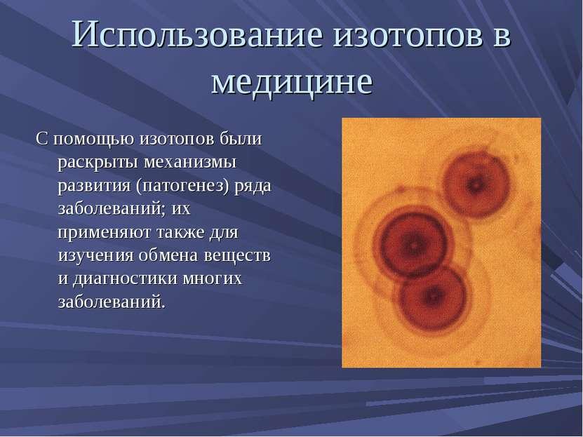 Использование изотопов в медицине С помощью изотопов были раскрыты механизмы ...