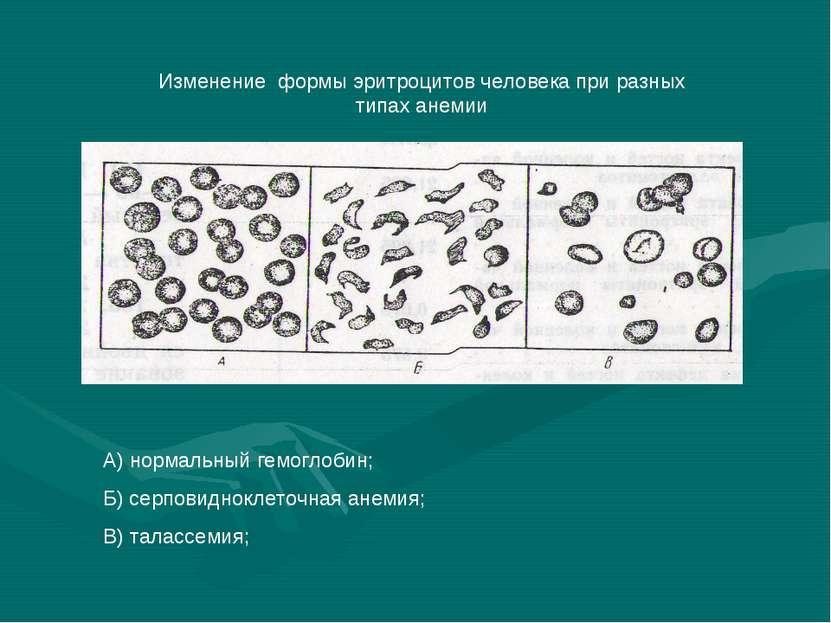 Изменение формы эритроцитов человека при разных типах анемии А) нормальный ге...