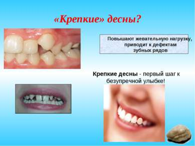 «Крепкие» десны? Повышают жевательную нагрузку, приводит к дефектам зубных ря...