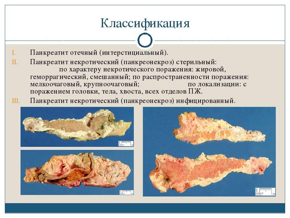 Классификация Панкреатит отечный (интерстициальный). Панкреатит некротический...