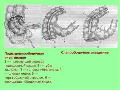 Подвздошноободочная инвагинация 1 — приводящий отрезок подвздошной кишки; 2 —...