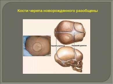 Кости черепа новорожденного разобщены