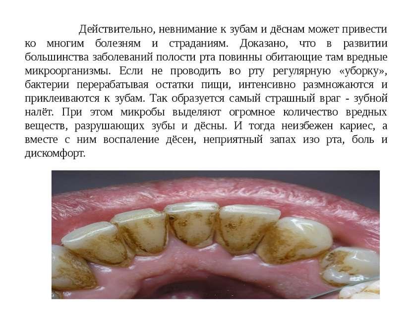 Действительно, невнимание к зубам и дёснам может привести ко многим болезням ...