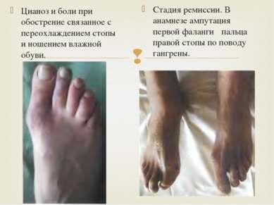 Цианоз и боли при обострение связанное с переохлаждением стопы и ношением вла...